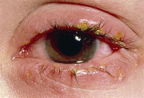 pink eye conjunctivitis symptoms  treatments