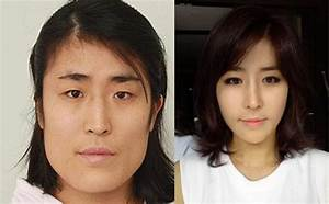 Here's 15 Of The Most Insane Before And After Korean ...