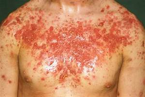 Acne Conglobata - Pictures, Treatment, Symptoms, Causes