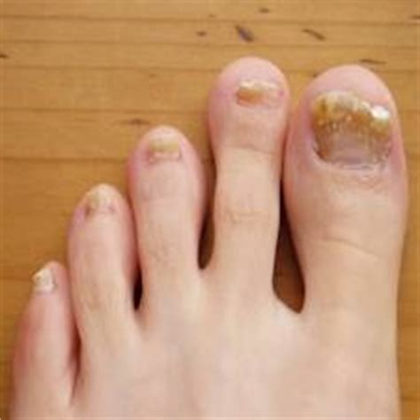 Toenail Fungus Symptoms  Nails Journal. Clothes Signs. Health Warning Signs. Diabetic Foot Signs. Mercury Signs Of Stroke. Cancer Larynx Signs. Undertale Signs. The Originals Signs. Rest Area Signs