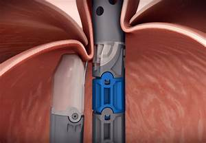 Innovative Endoscopic Treatment For Gerd Now Available