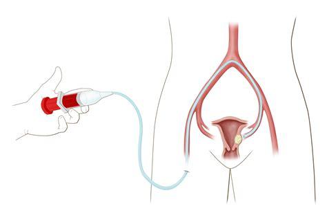 Uterine Artery Embolization For Uterine Fibroid Treatment