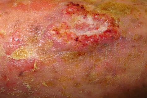 Managing Non-melanoma Skin Cancer In Primary Care