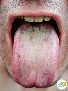 How to Get Rid of Oral Thrush with Top 10 Home Remedies ...