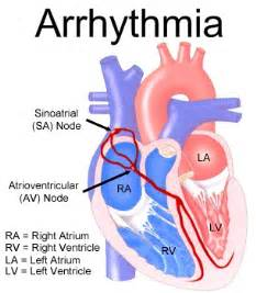... regular rhythm, said sinus rhythm in favor of a chaotic and irregular  Heart Diseases Arrhythmia