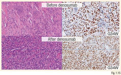骨肉瘤- 2 |肿瘤的WHO分型必威投注限额 - 必威im电竞,biwei必威体育备用网站,必威投注网址