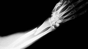 New way to treat broken bones | X-Ray Spex | Pinterest ...