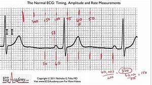 Determining Rate 6-3 - Ecg    Ekg Interpretation