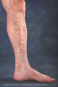 Varicose Vein Removal St. George | Heart of Dixie Vein Center