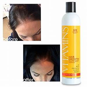 Hair Loss Shampoo- VITAMINS Natural DHT Blocker Treatment ...