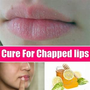 How To Cure Chapped Lips Search Home Remedy