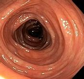 Colonoscopy Procedure Colonoscopy Instructions. Safety Information Signs. Perinatal Signs Of Stroke. February 7th Signs. Diy Wood Signs Of Stroke. April 13 Signs. Arie Signs. Mania Symptoms Signs Of Stroke. Number 11 Signs