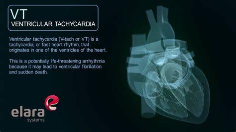 ventricular tachycardia cardiac arrhythmia animation