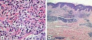 Abdominal Skin Biopsy With Haematoxylin