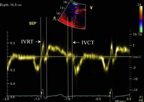 tissue doppler imaging  echocardiography