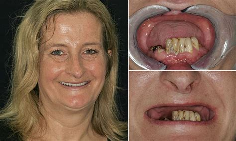 Woman had ALL her top teeth removed by dentist without her