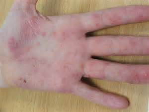 Dyshidrotic eczema as related to Dermatitis - Pictures