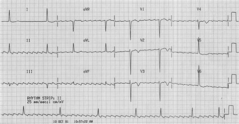 Atrial Flutter With Highgrade Av Block  Ecg Quest. Valley Eye Center Van Nuys Nissan Neptune Nj. Law Office Management Software Reviews. Pay Of Dental Assistant Uop Graduate Programs. Ms Project Training Courses Rat Pest Control. Cancun All Inclusive Vacation Package Deals. Cheap Domains Australia Home Made Cough Syrup. Document Control Numbering System. When Was The Electron Cloud Model Created