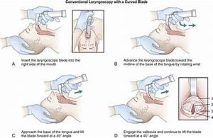Laryngoscopic Orotracheal And Nasotracheal Intubation