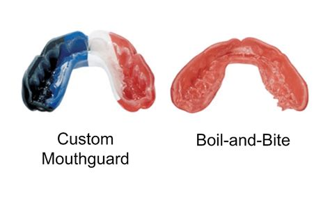 What Is Boil And Bite Mouthguard?  News Dentagama