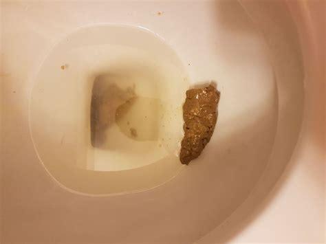 normal stool  liver flush support forum
