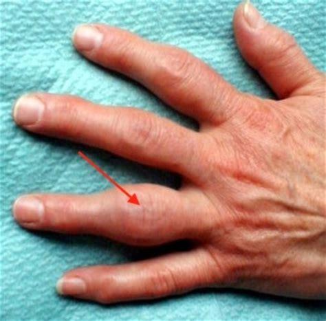 ursache der arthrosen  den fingern
