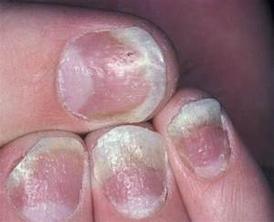 Лечить грибок на ногтях ног в домашних условиях