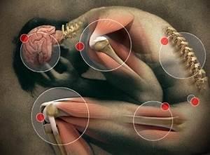 Artrose knie symptomen