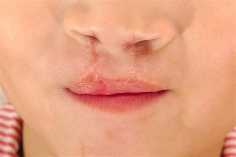 Cleft Lip With Or Without Cleft Palate Main Causes And