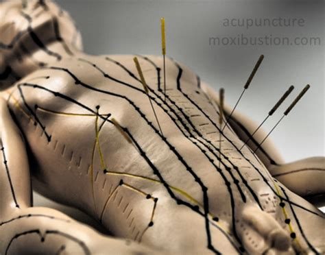 Weight Loss and Appetite Control Acupuncture Points