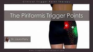 Piriformis Trigger Points: Double Trouble ...