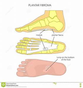 Plantar Fibroma Stock Vector  Illustration Of Illustration