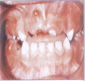 Dental Caries definition, Classification of Dental Caries ...