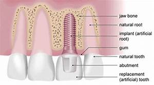 Dental Implants  Dentures And Bridges