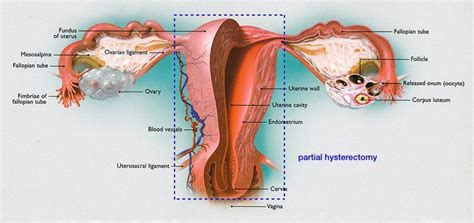 Hysterectomy | The Center for Innovative GYN Care