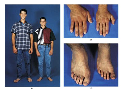 Gigantism Causes Symptoms Treatment Gigantism
