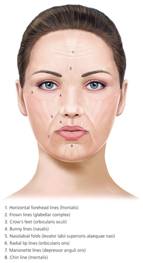 botulinum toxin injection  facial wrinkles american