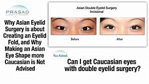 Why Changing Natural Asian Double Eyelids into a Caucasian ...