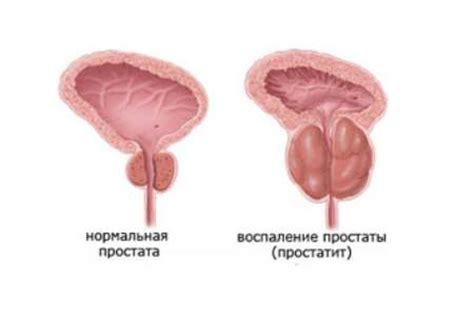 гострий простатит лікування