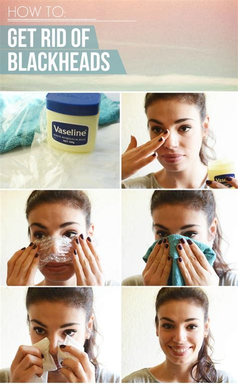 getting rid of a how to get rid of blackheads permanently