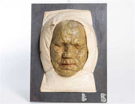 Leprozorija (mulāžu) kolekcija - Paula Stradiņa medicīnas ...