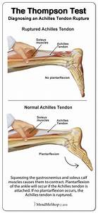 25 Best Ideas About Calf Muscle Anatomy On Pinterest