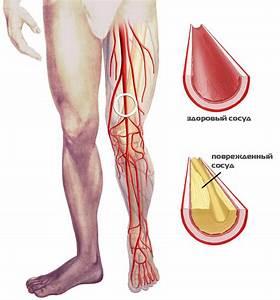 Покраснение ног при диабете лечение