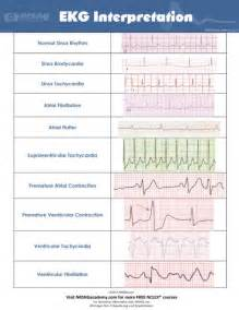 Image EKG Rhythm Strip Interpretation Cheat Sheet