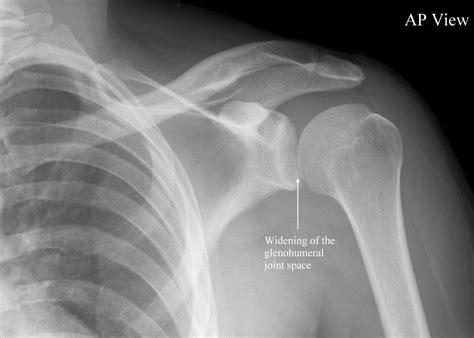 Posterior Shoulder Dislocation • LITFL Medical Blog • Trauma