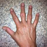 Артроз кисти рук и его лечение мазь