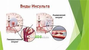 Как лечить псориаз в таджикистане