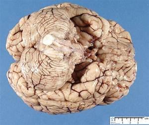 Brain - Humpath Com