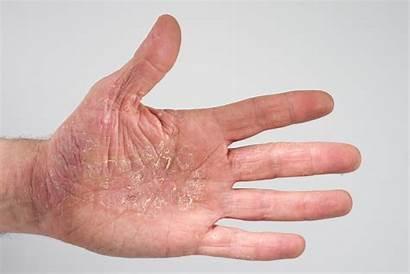 Neurodermitis Ekzem Schuppenflechte Atopisches Hautausschlag Gegen Haut
