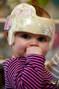 Pin by Leigh Gibson on Cranial Bands/Helmets | Doc band ...
